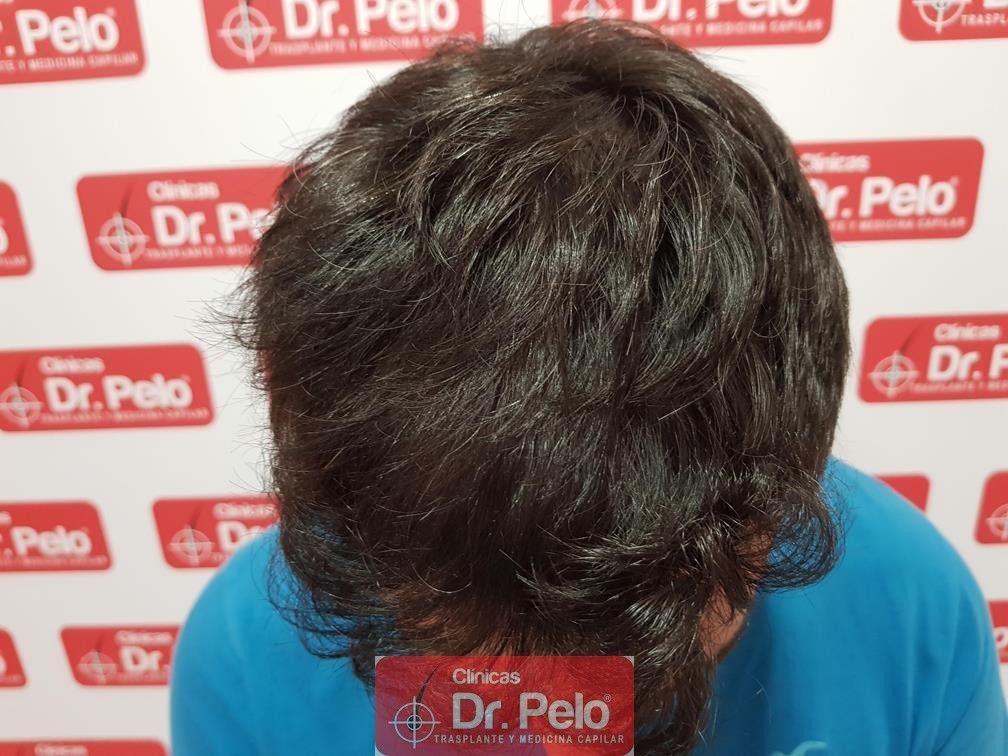 [Imagen: injerto-capilar-dr-pelo-11-2.jpg]