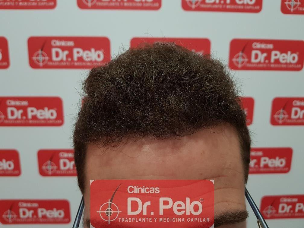 [Imagen: injerto-capilar-dr-pelo-13-1.jpg]