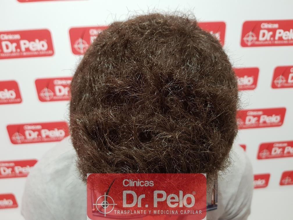 [Imagen: injerto-capilar-dr-pelo-14-1.jpg]
