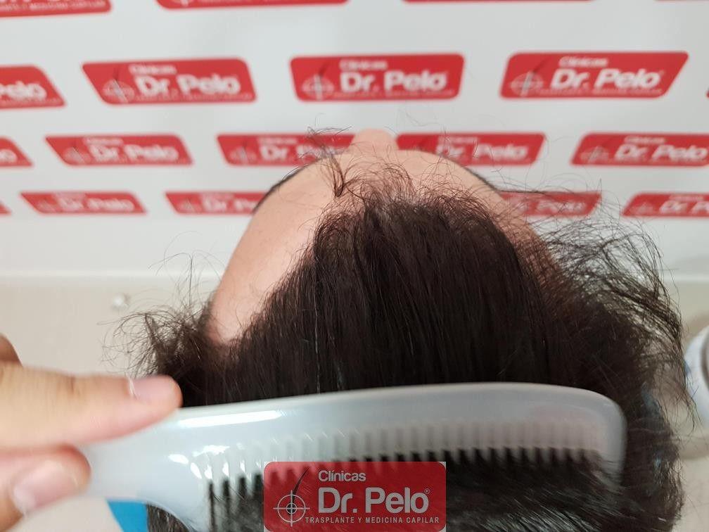 [Imagen: injerto-capilar-dr-pelo-15-2.jpg]