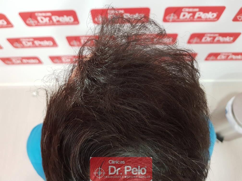 [Imagen: injerto-capilar-dr-pelo-16-2.jpg]