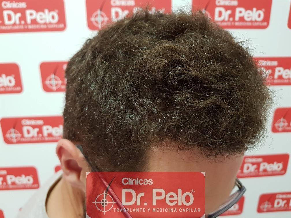 [Imagen: injerto-capilar-dr-pelo-18.jpg]