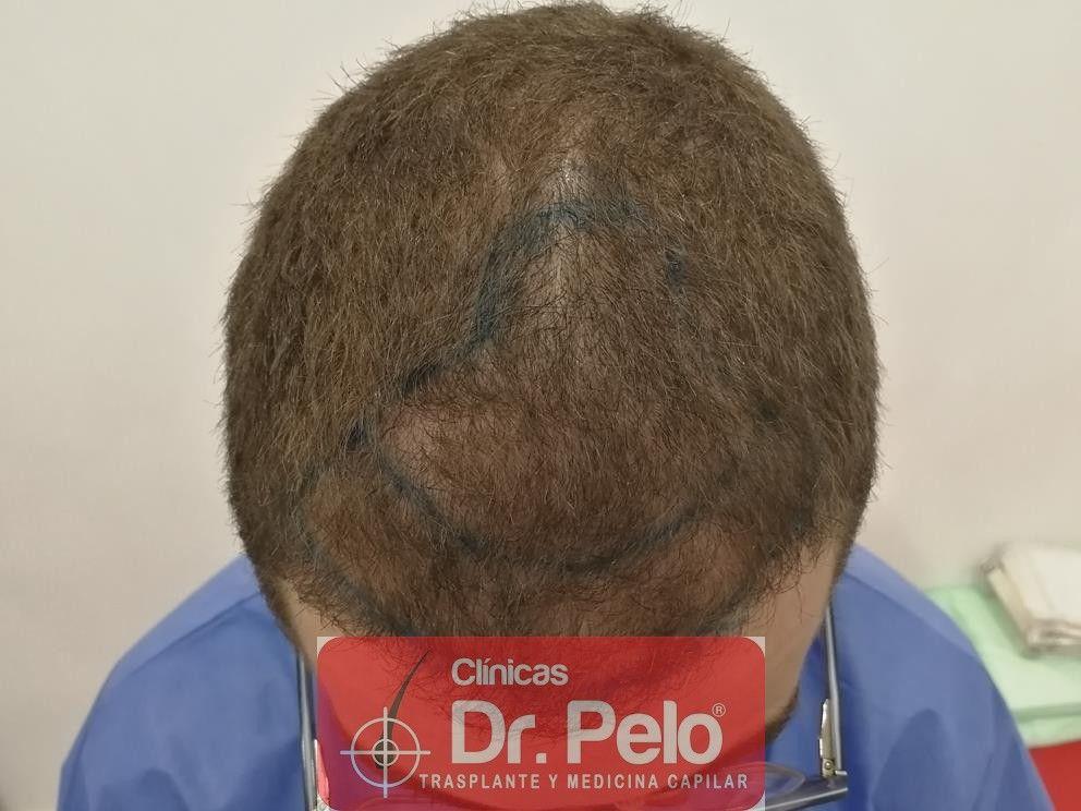 [Imagen: injerto-capilar-dr-pelo-6-1.jpg]