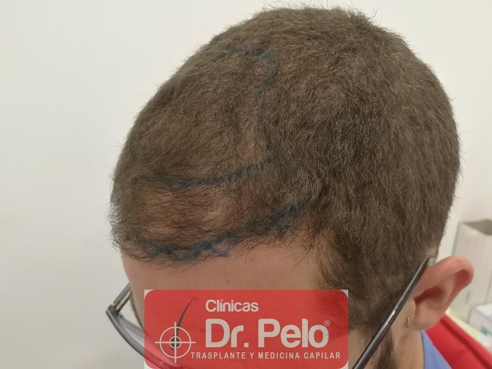 [Imagen: injerto-capilar-dr-pelo-7-1.jpg]