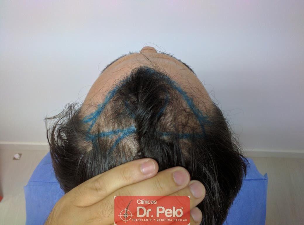[Imagen: injerto-capilar-dr-pelo-7-2.jpg]