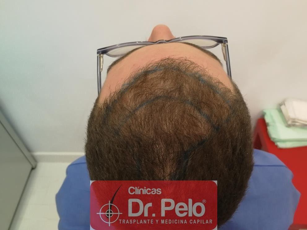[Imagen: injerto-capilar-dr-pelo-8-1.jpg]