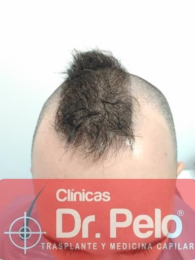[Imagen: tratamiento-capilar-mesoterapia-dr-pelo-1.jpg]