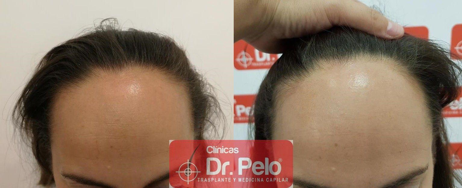 [Imagen: tratamiento-capilar-mesoterapia-dr-pelo-10-1.jpg]