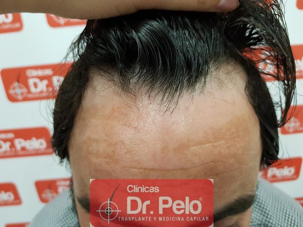 [Imagen: tratamiento-capilar-mesoterapia-dr-pelo-10.jpg]