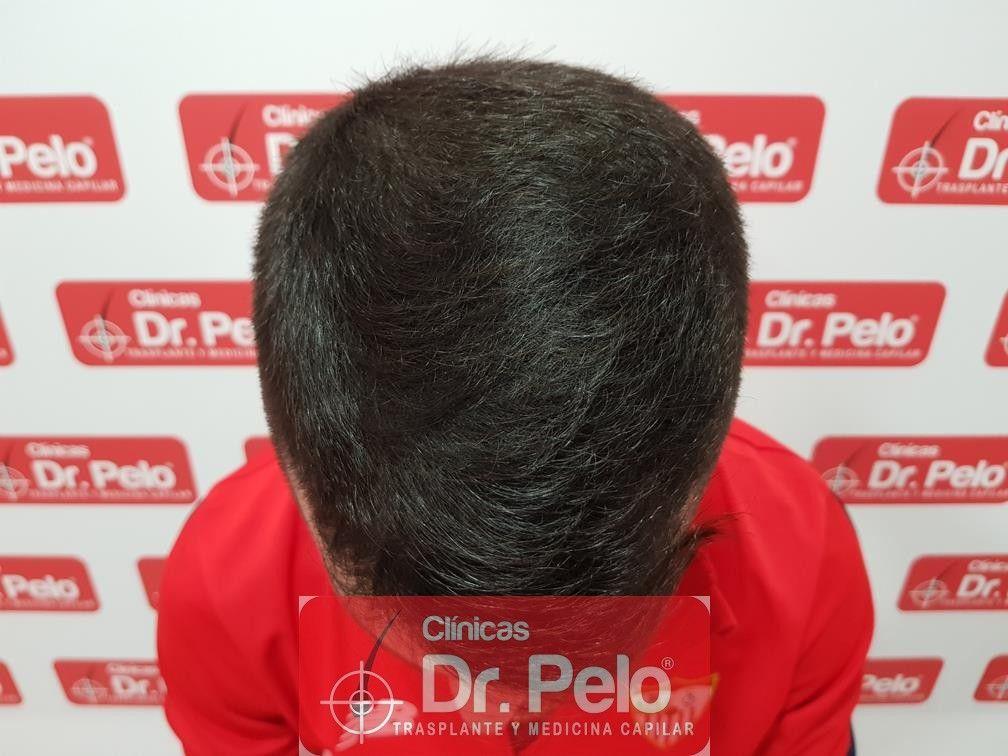 [Imagen: tratamiento-capilar-mesoterapia-dr-pelo-11-2.jpg]