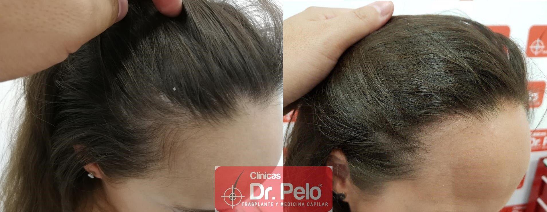 [Imagen: tratamiento-capilar-mesoterapia-dr-pelo-12-1.jpg]