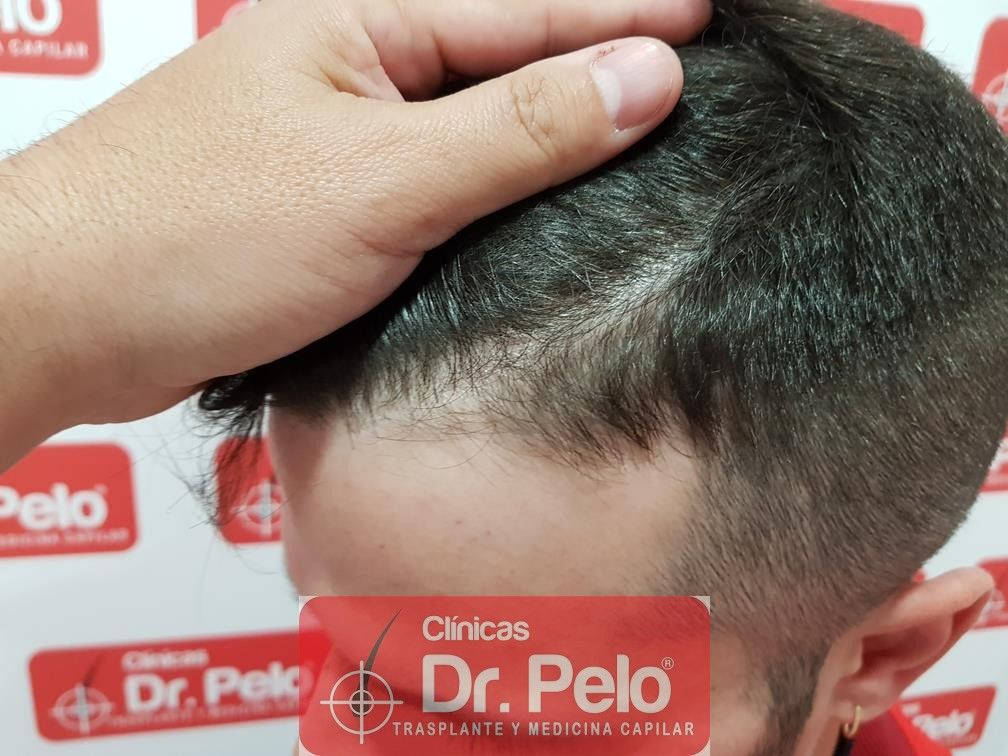 [Imagen: tratamiento-capilar-mesoterapia-dr-pelo-13-1.jpg]
