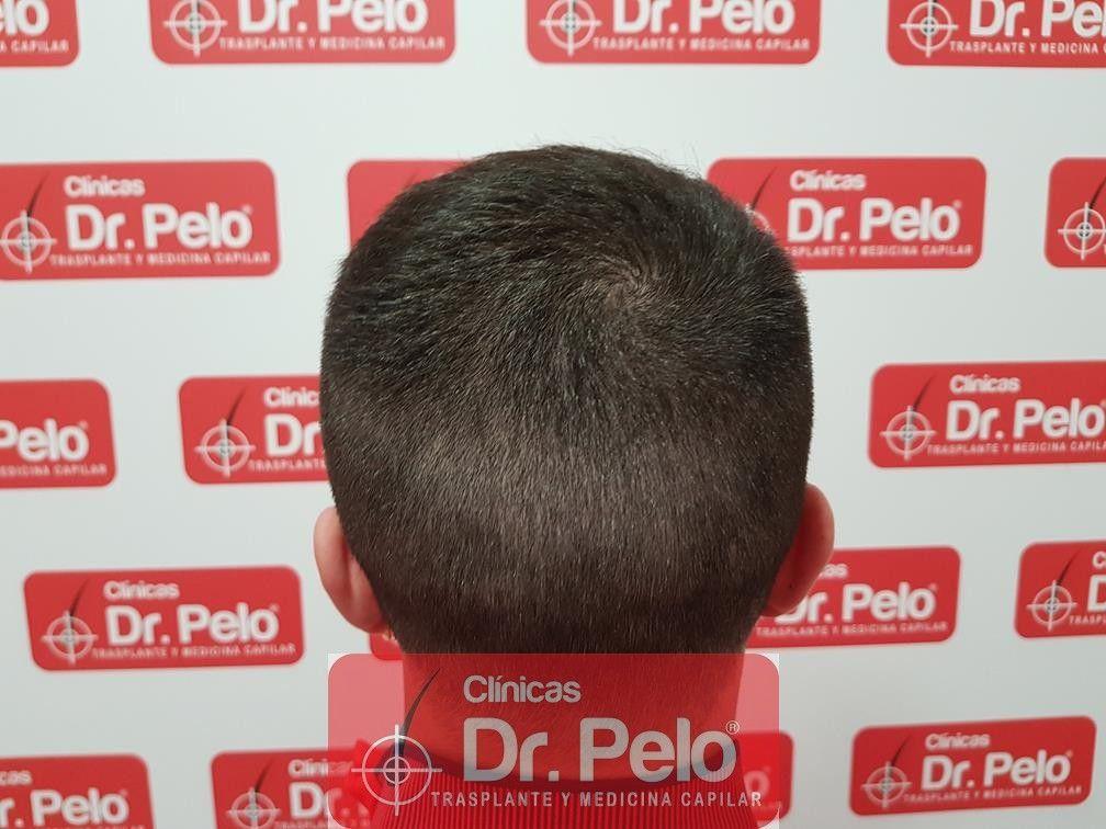 [Imagen: tratamiento-capilar-mesoterapia-dr-pelo-14-1.jpg]