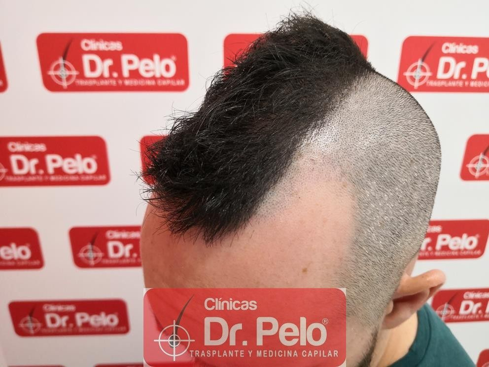 [Imagen: tratamiento-capilar-mesoterapia-dr-pelo-14-2.jpg]