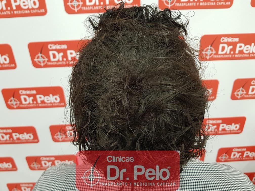[Imagen: tratamiento-capilar-mesoterapia-dr-pelo-14.jpg]