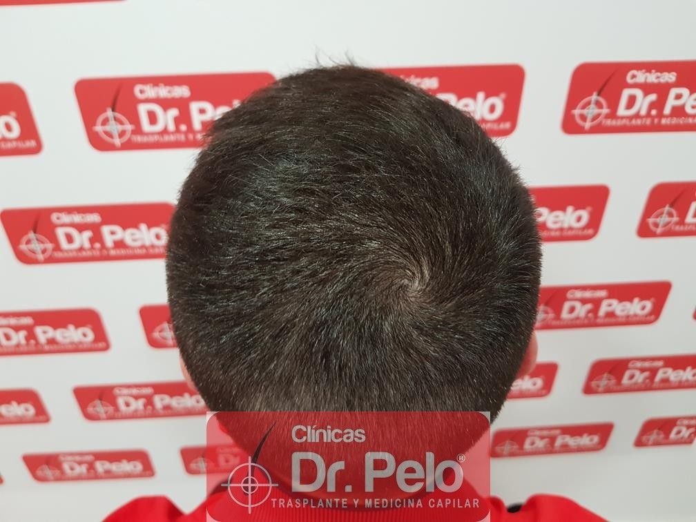 [Imagen: tratamiento-capilar-mesoterapia-dr-pelo-15-1.jpg]