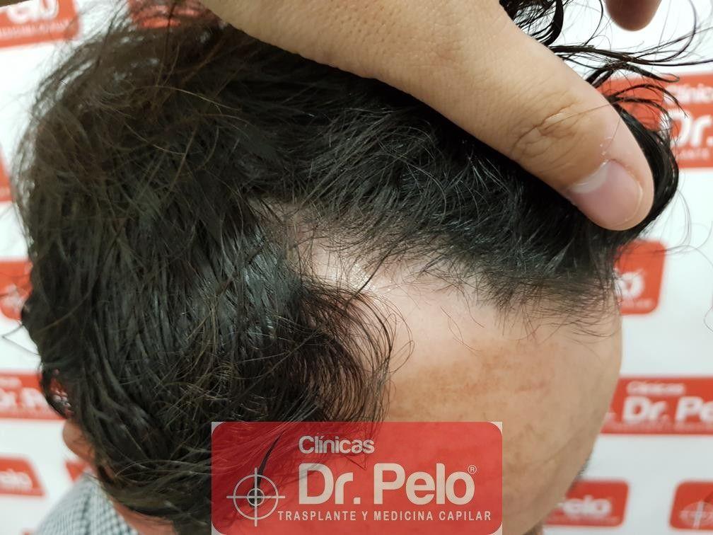 [Imagen: tratamiento-capilar-mesoterapia-dr-pelo-15.jpg]