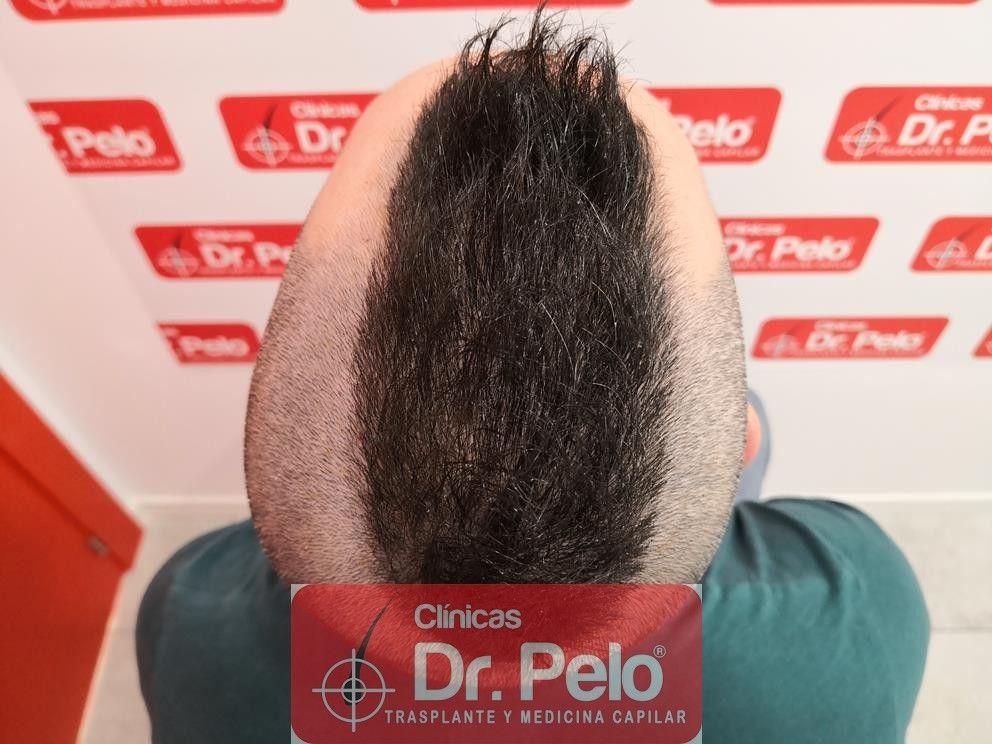 [Imagen: tratamiento-capilar-mesoterapia-dr-pelo-16-1.jpg]