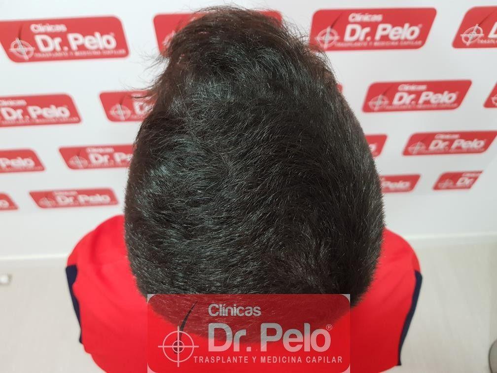 [Imagen: tratamiento-capilar-mesoterapia-dr-pelo-16.jpg]