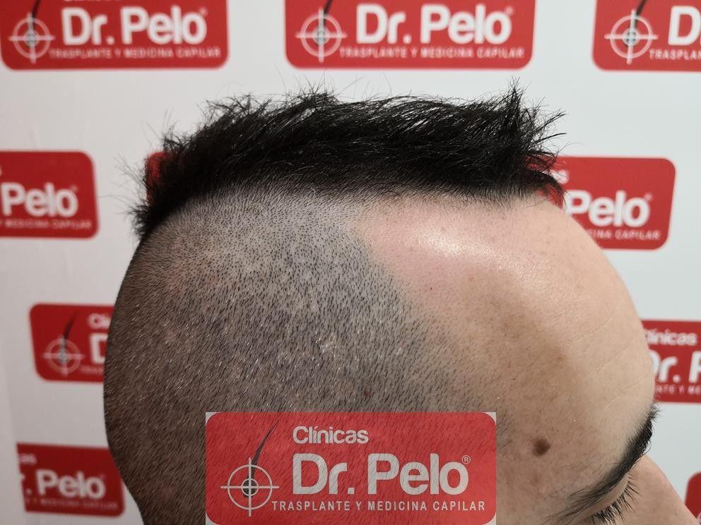 [Imagen: tratamiento-capilar-mesoterapia-dr-pelo-17-1.jpg]