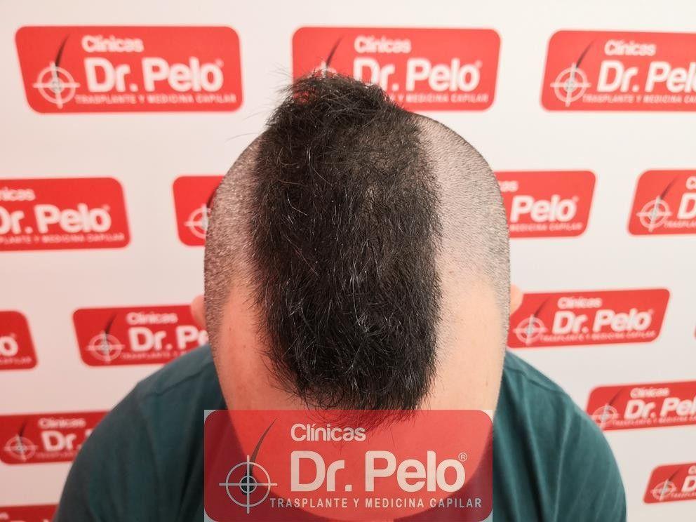[Imagen: tratamiento-capilar-mesoterapia-dr-pelo-18.jpg]