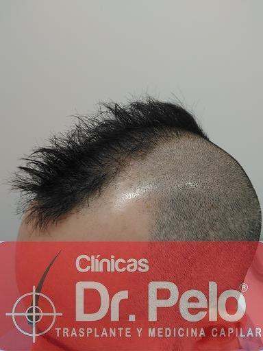 [Imagen: tratamiento-capilar-mesoterapia-dr-pelo-2-2.jpg]