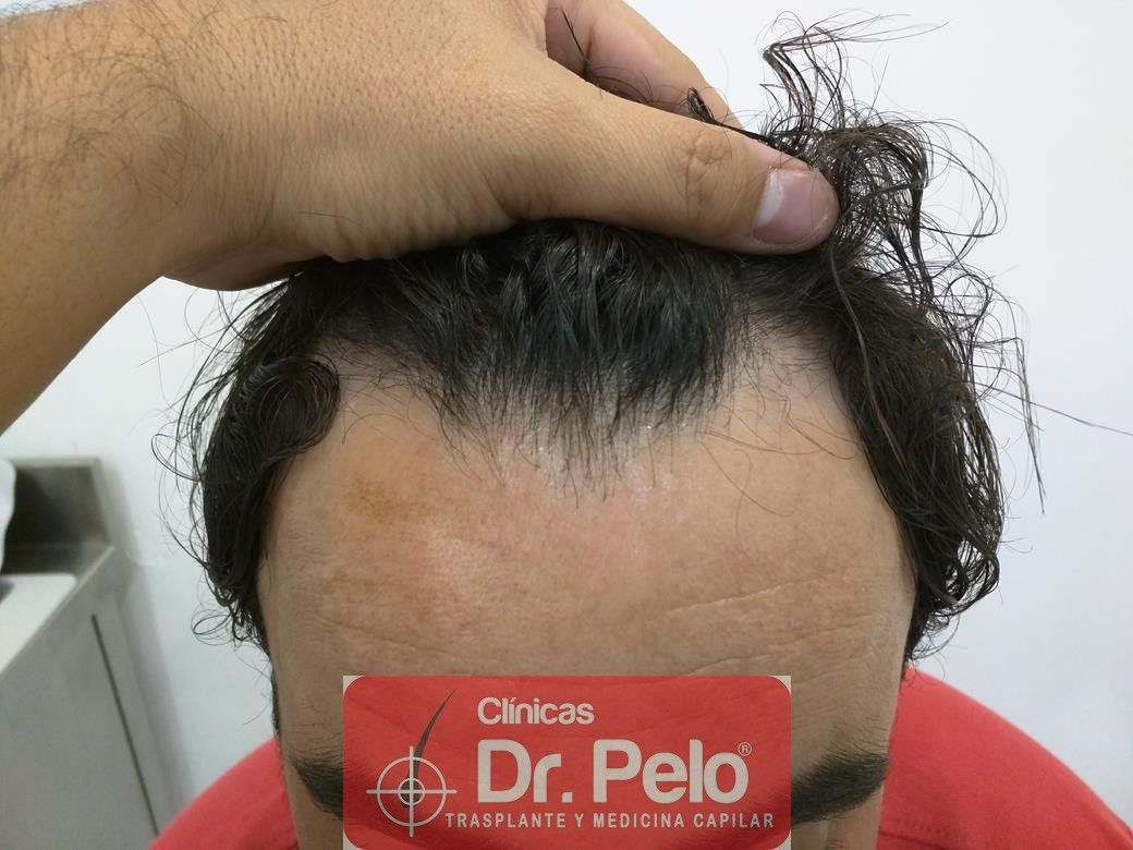 [Imagen: tratamiento-capilar-mesoterapia-dr-pelo-2.jpg]