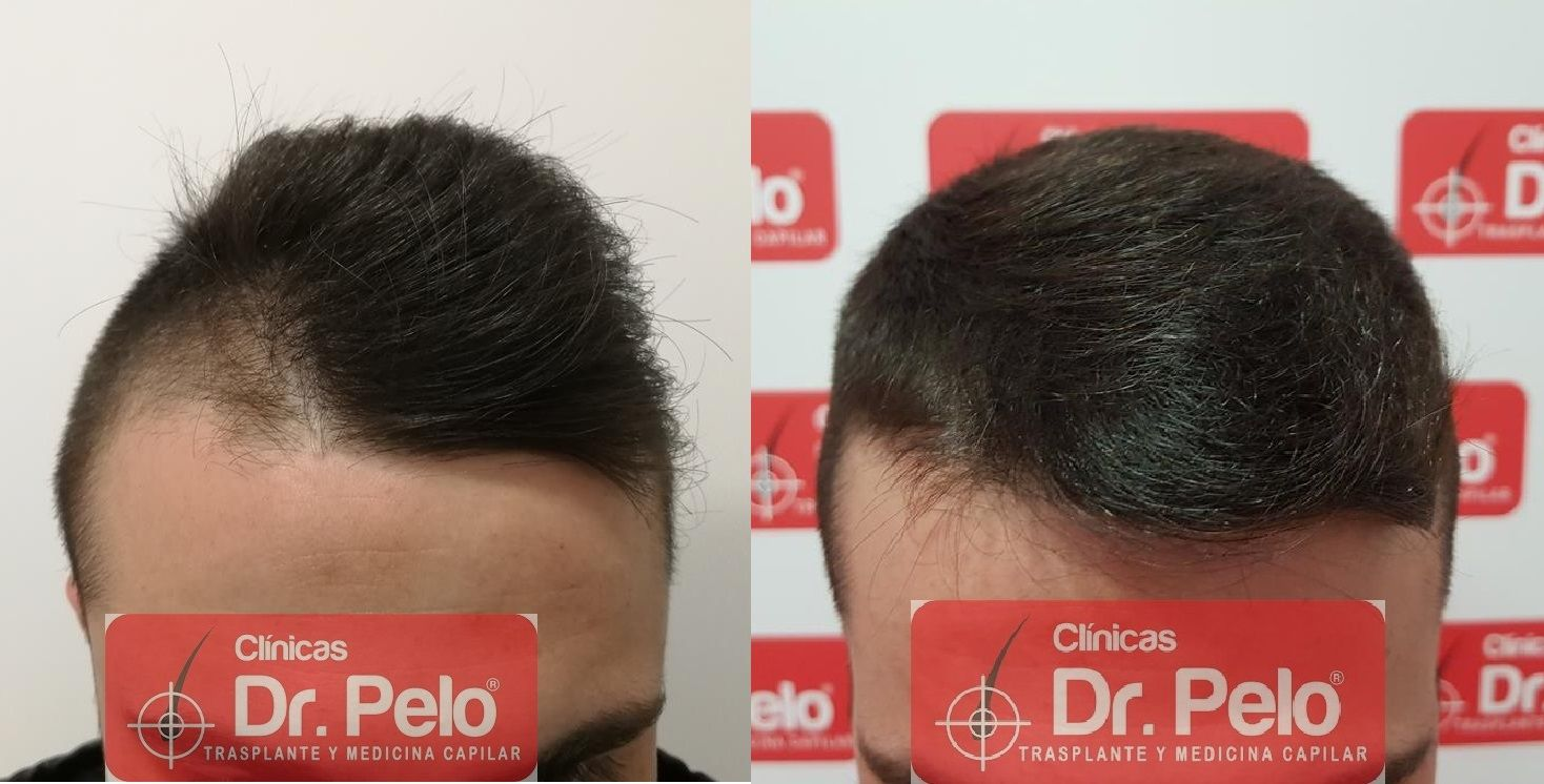 [Imagen: tratamiento-capilar-mesoterapia-dr-pelo-20-1.jpg]