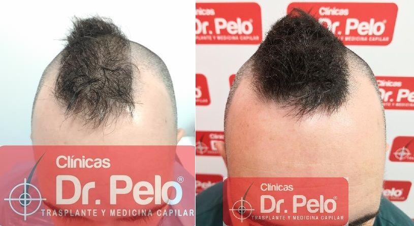 [Imagen: tratamiento-capilar-mesoterapia-dr-pelo-20-2.jpg]