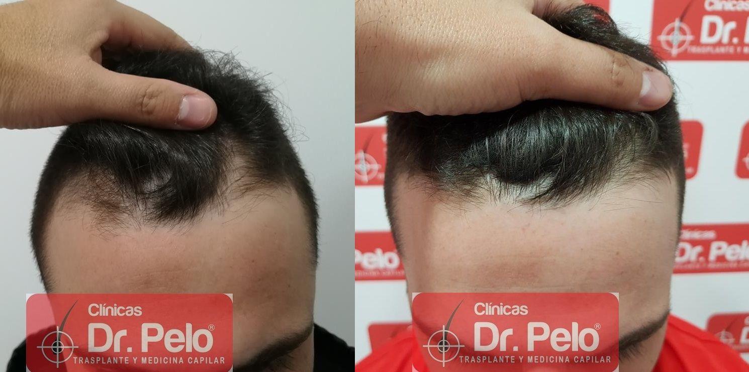 [Imagen: tratamiento-capilar-mesoterapia-dr-pelo-21-1.jpg]