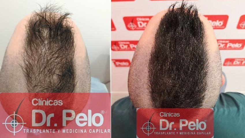 [Imagen: tratamiento-capilar-mesoterapia-dr-pelo-21-2.jpg]