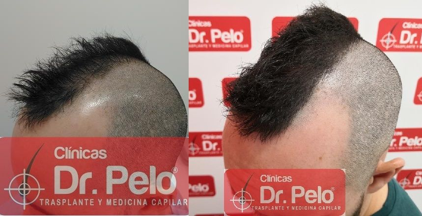 [Imagen: tratamiento-capilar-mesoterapia-dr-pelo-22-1.jpg]