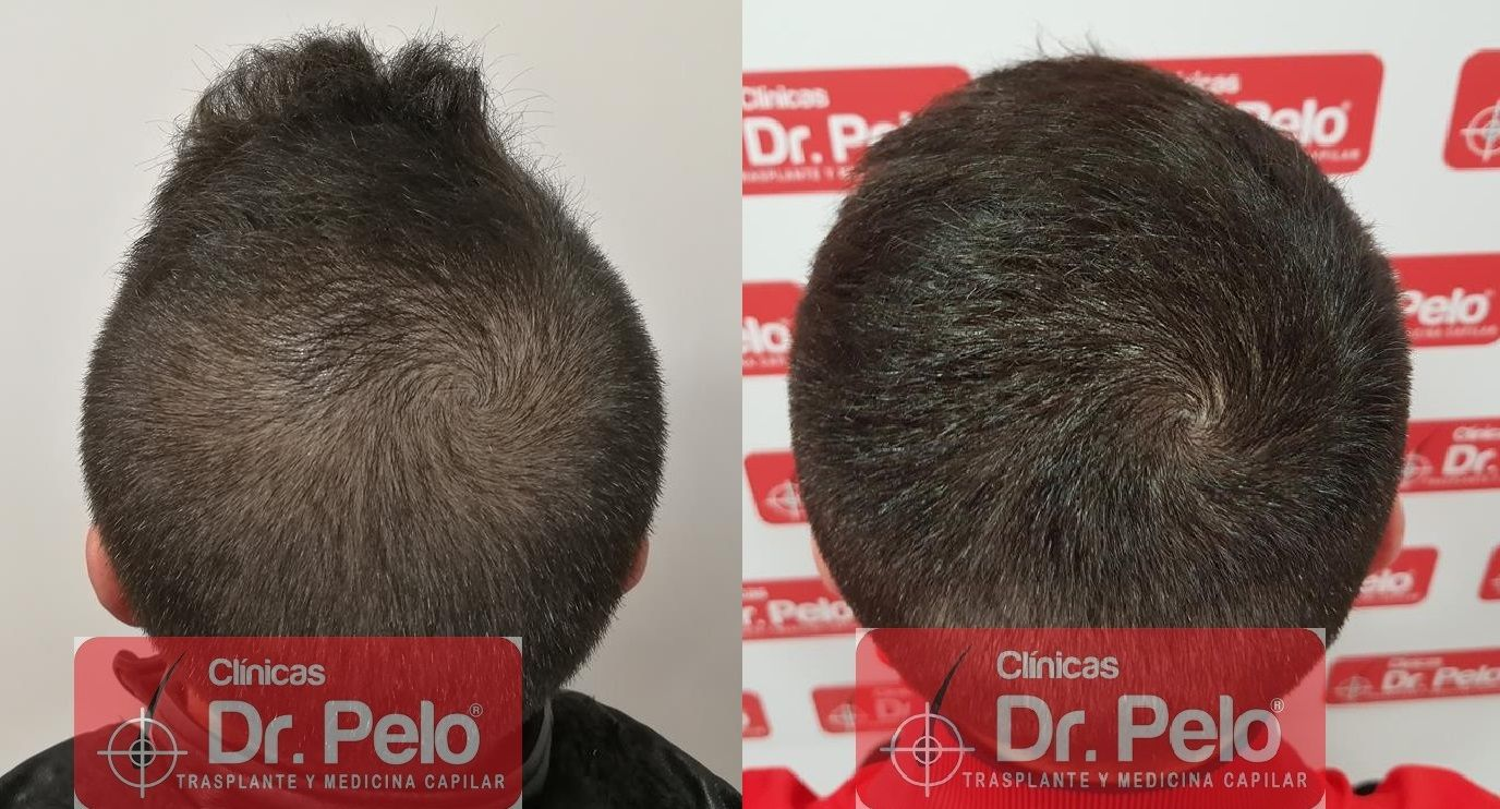 [Imagen: tratamiento-capilar-mesoterapia-dr-pelo-22.jpg]