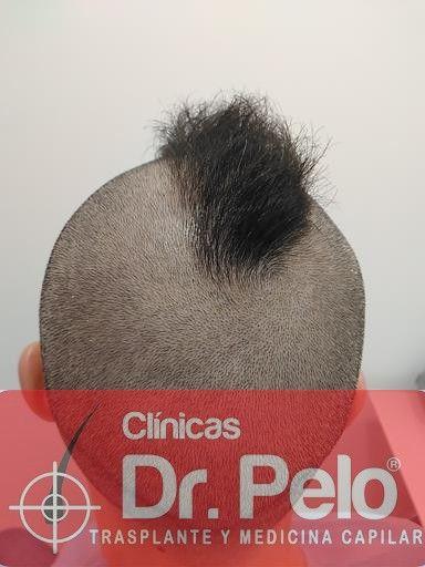 [Imagen: tratamiento-capilar-mesoterapia-dr-pelo-3-2.jpg]
