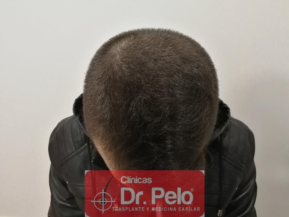[Imagen: tratamiento-capilar-mesoterapia-dr-pelo-4-1.jpg]