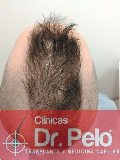 [Imagen: tratamiento-capilar-mesoterapia-dr-pelo-4-2.jpg]