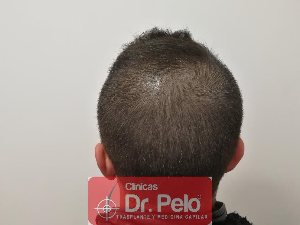 [Imagen: tratamiento-capilar-mesoterapia-dr-pelo-5-1.jpg]