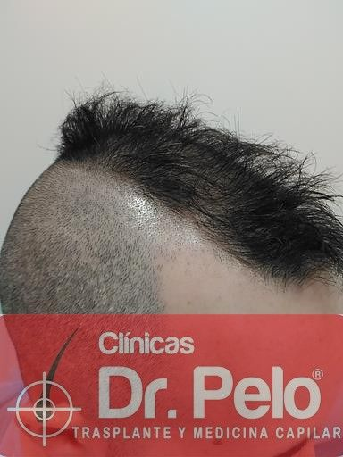 [Imagen: tratamiento-capilar-mesoterapia-dr-pelo-5-2.jpg]