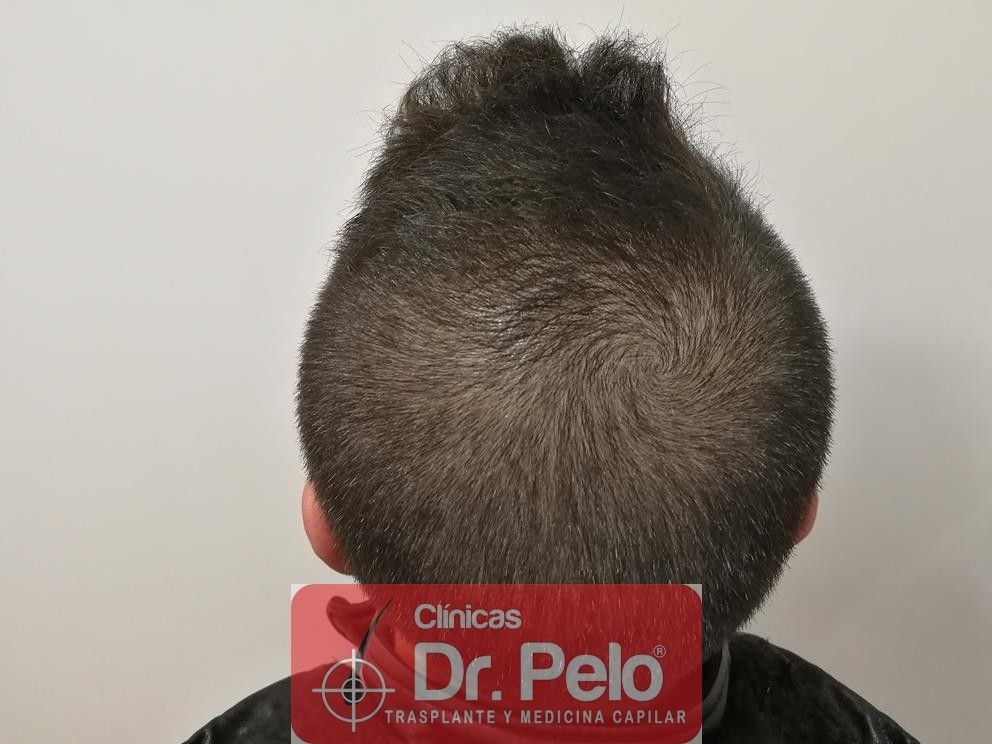 [Imagen: tratamiento-capilar-mesoterapia-dr-pelo-6-1.jpg]