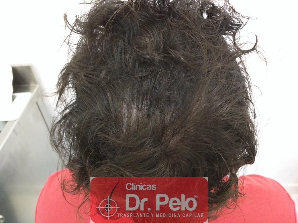 [Imagen: tratamiento-capilar-mesoterapia-dr-pelo-6.jpg]