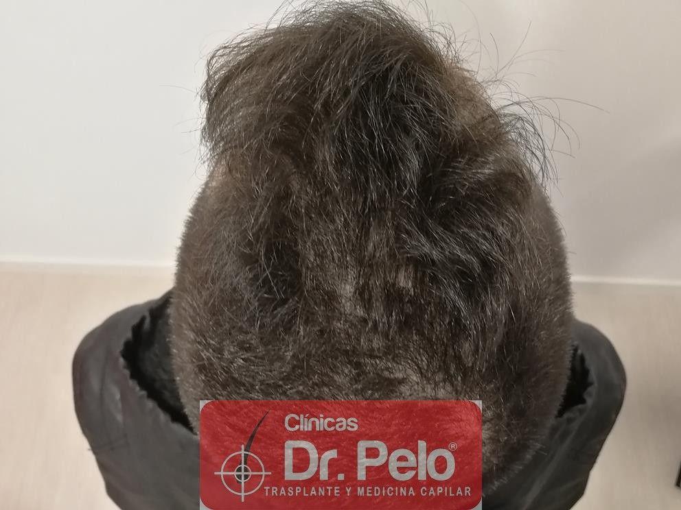[Imagen: tratamiento-capilar-mesoterapia-dr-pelo-7-1.jpg]