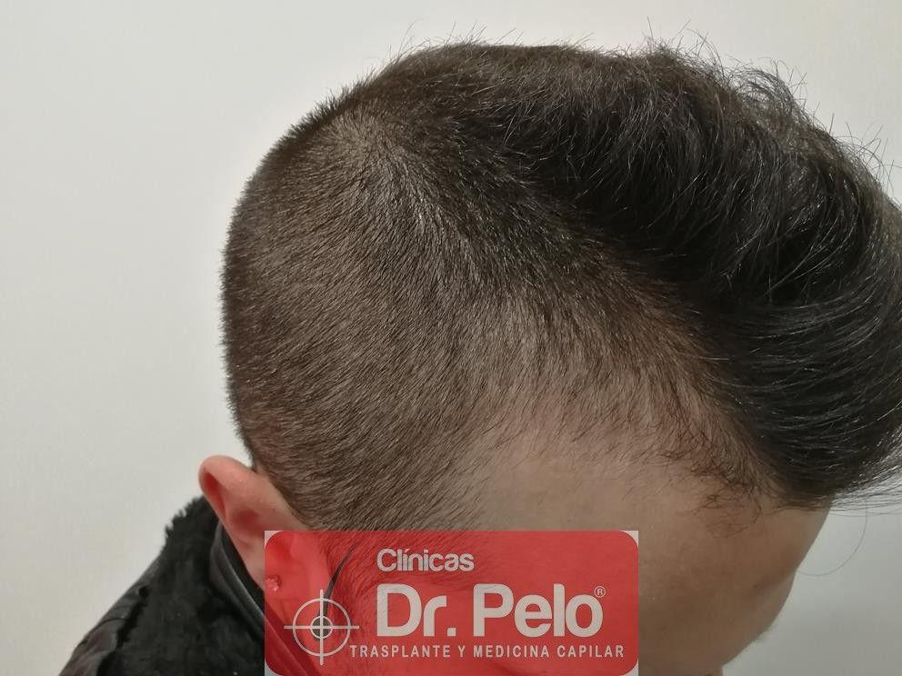 [Imagen: tratamiento-capilar-mesoterapia-dr-pelo-8-1.jpg]