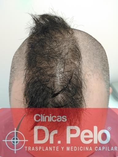 [Imagen: tratamiento-capilar-mesoterapia-dr-pelo-8-2.jpg]