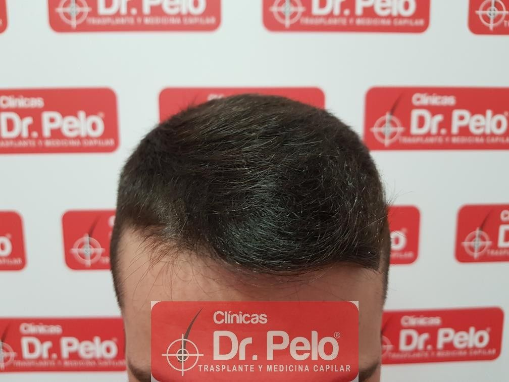 [Imagen: tratamiento-capilar-mesoterapia-dr-pelo-9-1.jpg]