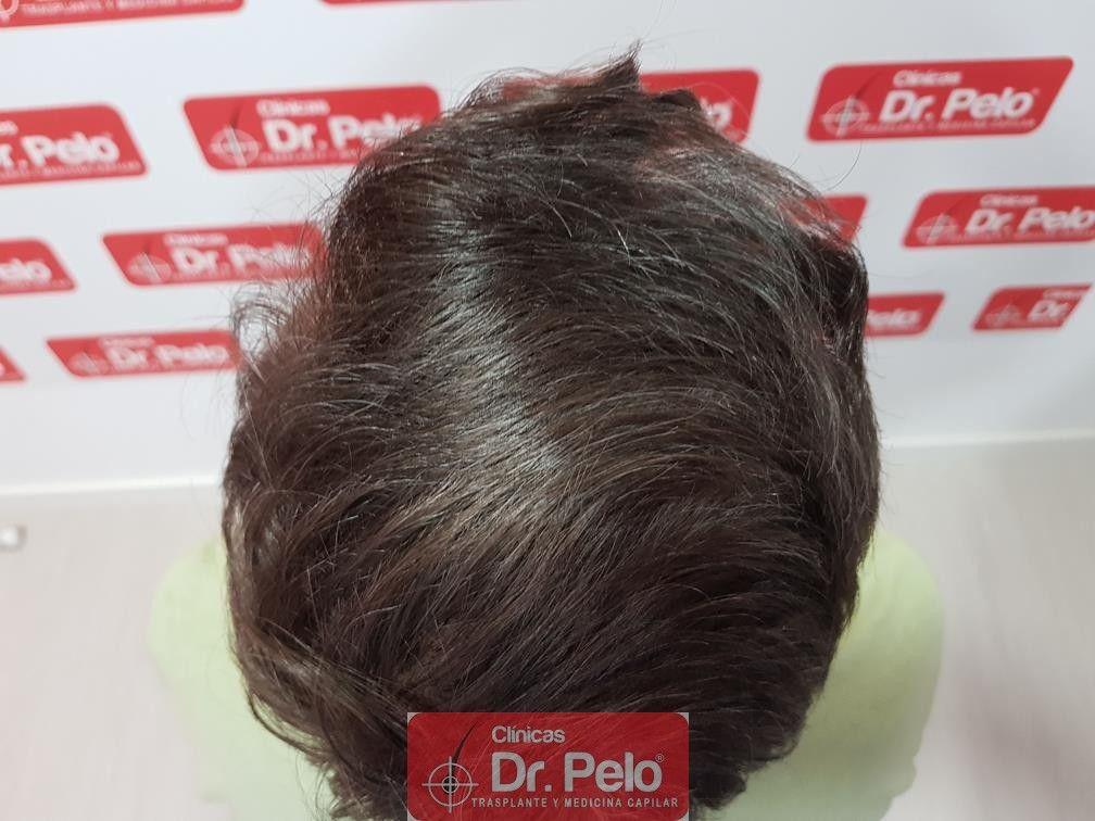 [Imagen: transplante-capilar-dr-pelo-14.jpg]
