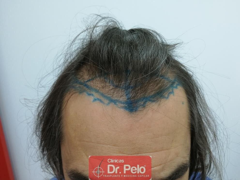 [Imagen: transplante-capilar-dr-pelo-2.jpg]