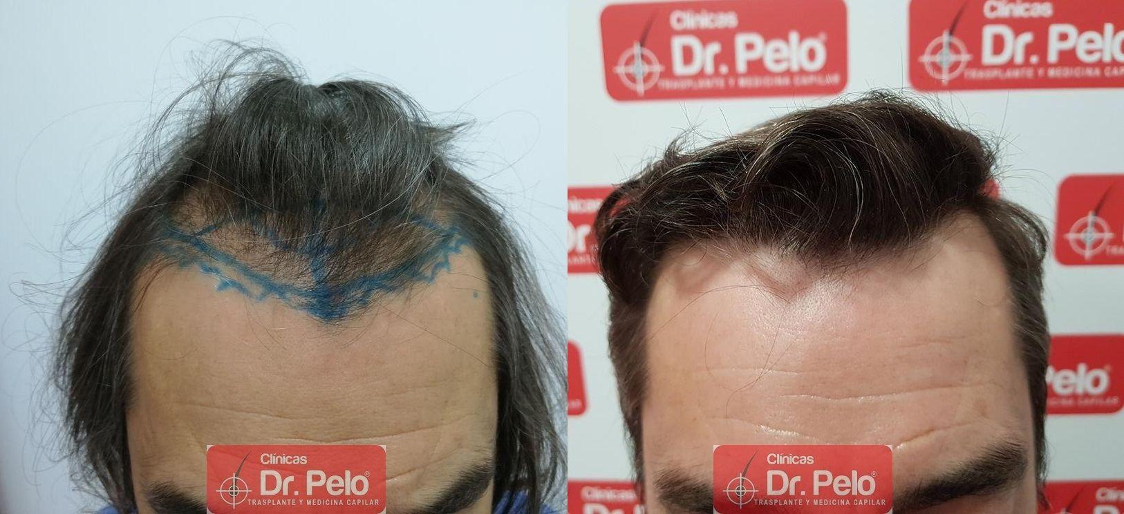 [Imagen: transplante-capilar-dr-pelo-20.jpg]