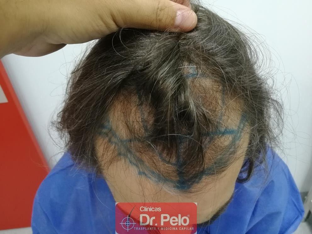 [Imagen: transplante-capilar-dr-pelo-3.jpg]