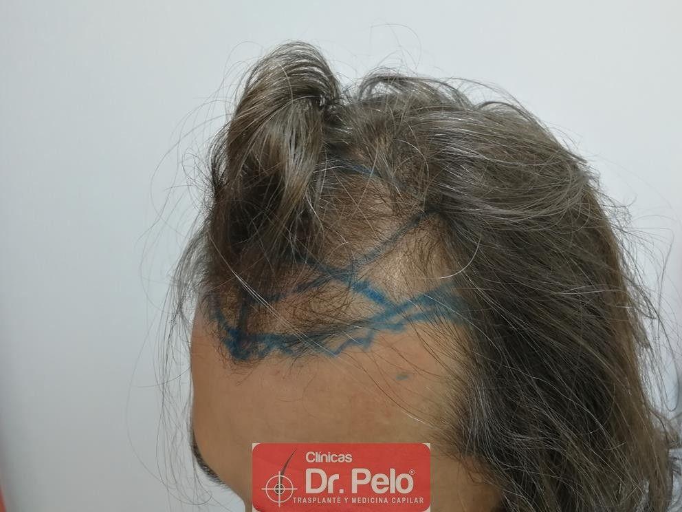 [Imagen: transplante-capilar-dr-pelo-4.jpg]