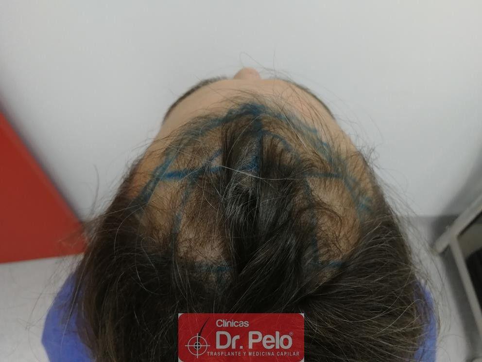 [Imagen: transplante-capilar-dr-pelo-5.jpg]